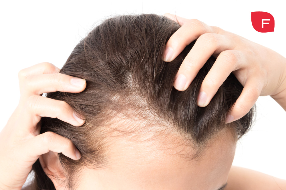 ¿Alopecia? Causas y tratamientos para evitar la caída del cabello