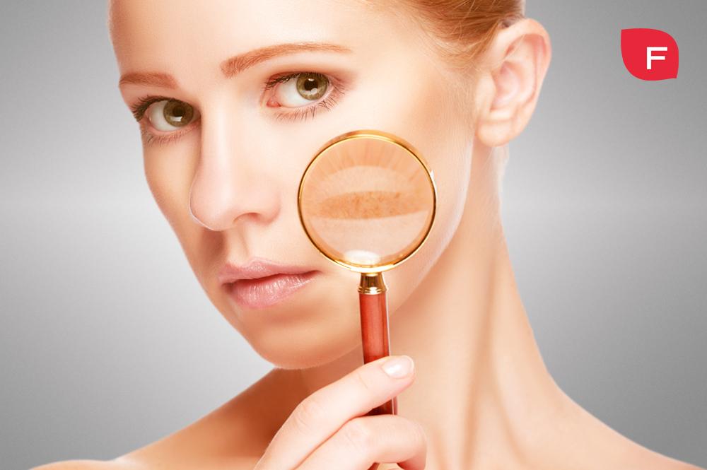 ¿Cómo quitar las manchas en la piel y en la cara? ¡Te damos las claves!
