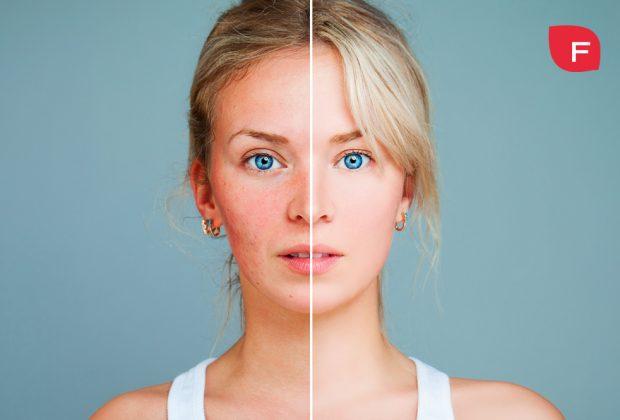Rosácea; causas, síntomas, tipos y tratamientos para eliminarla