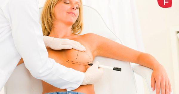 Todo sobre las cirugías de aumento de pecho y elevación de mama