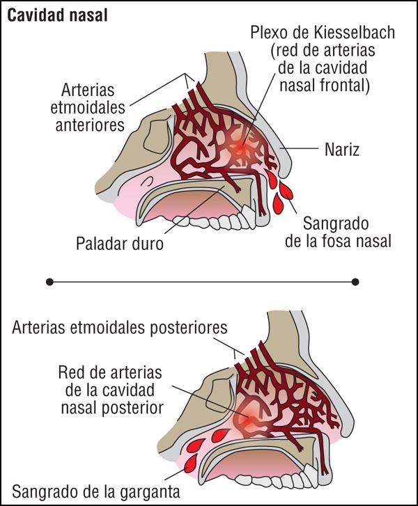 Epistaxis o hemorragia nasal, ¿cómo evitarla y tratarla?
